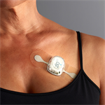 New Cardiac Monitoring Technology